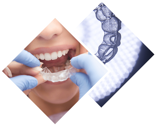 5 Reasons to Consider Invisalign Over Braces
